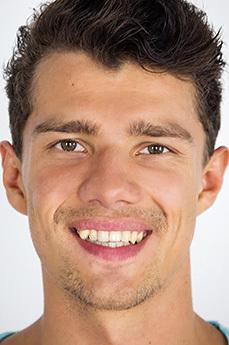 Alex Moretti